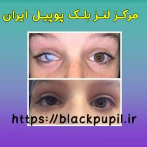 نمونه لنز بلک پوپیل