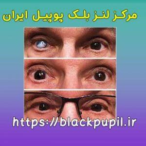 نمونه لنزهای بلک پوپیل